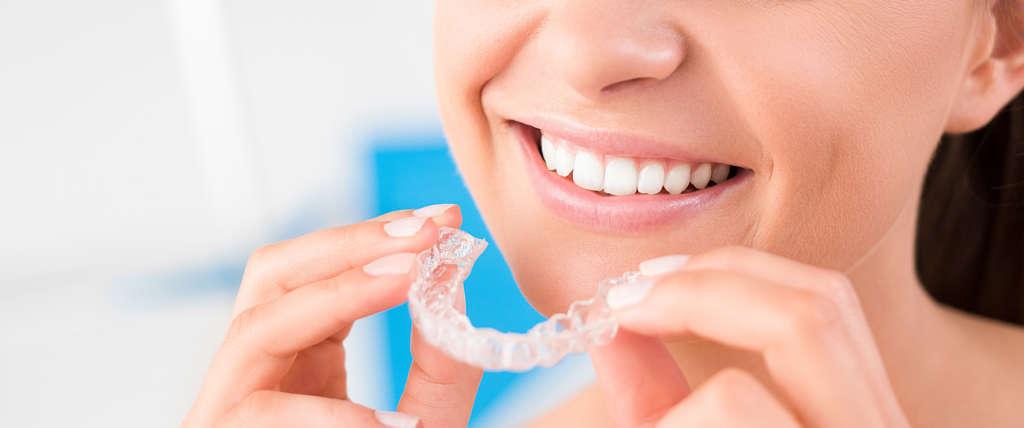 apparecchio dentista chivasso